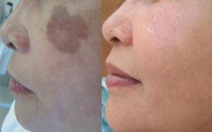 Age spots and dark spots removal!