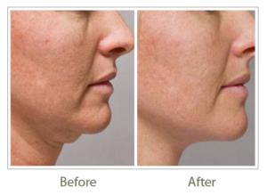 Turkey neck treatment, face lift