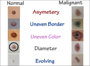Signs of Cancerous Moles