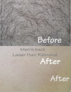Men's back laser hair removal Toronto, Men's chest and back laser hair removal
