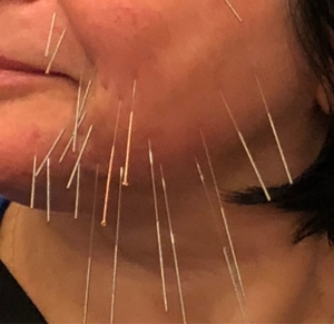 Cosmetic acupuncture for facelift, wrinkles, puffy eyes and dark circle improvement