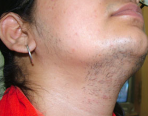 Facial laser hair removal is the best solution for the persistent facial h air