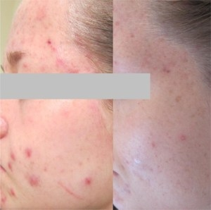 Tips for enhance healing acne