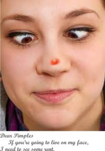 Acne, Acne Scars, Dark Spotsonface, Brown Spots, Sun Spots Treatments