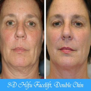 3D HIFU Facelift Double Chin Toronto