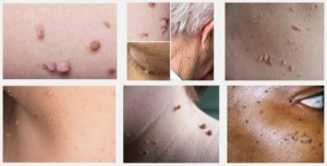 Skin tags nell laser