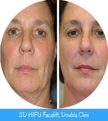 3D HIFU Facelift, Double Chin Nell Laser
