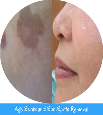 Age spots and Sunspots Removal Toronto Nell