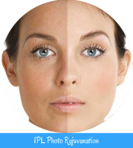 IPL Photo Rejuvenation Nell Laser