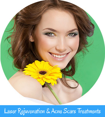 Laser Rejuvenation & Acne Scars Treatments Nell Laser
