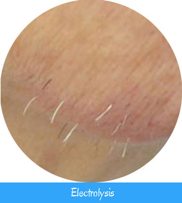 Electrolysis services at nell laser toronto