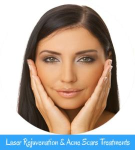 Laser Rejuvenation & Acne Scars Treatments Nell Laser