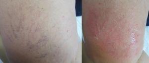 Laser spider veins treatment