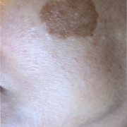 Solutions for Brown Spots, Age Spots, Sun spots removal!