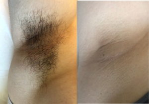 Under arms laser hair removal