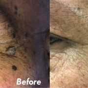 Remove Warts and Skin Tags Effortlessly