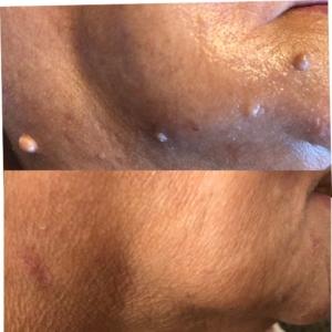 Skin tags, moles