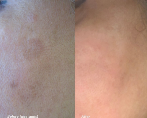 age spots removal