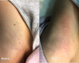 Skin tags removal, age spots removal Nell Laser Clinic