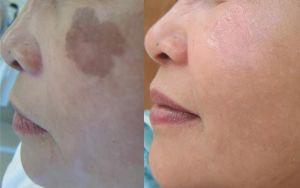 age spots, sun spots removal Nell Laser Clinic